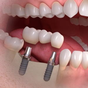 Navigation surgery for dental implants