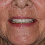 After Implant Bridge & Conventional Crowns Treatment