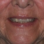 Before Implant Bridge & Conventional Crowns Treatment